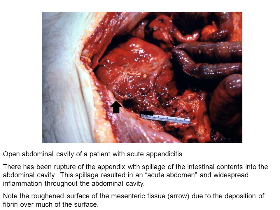 Open abdominal cavity of a patient with acute appendicitis