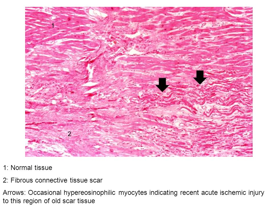 1: Normal tissue 2: Fibrous connective tissue scar.
