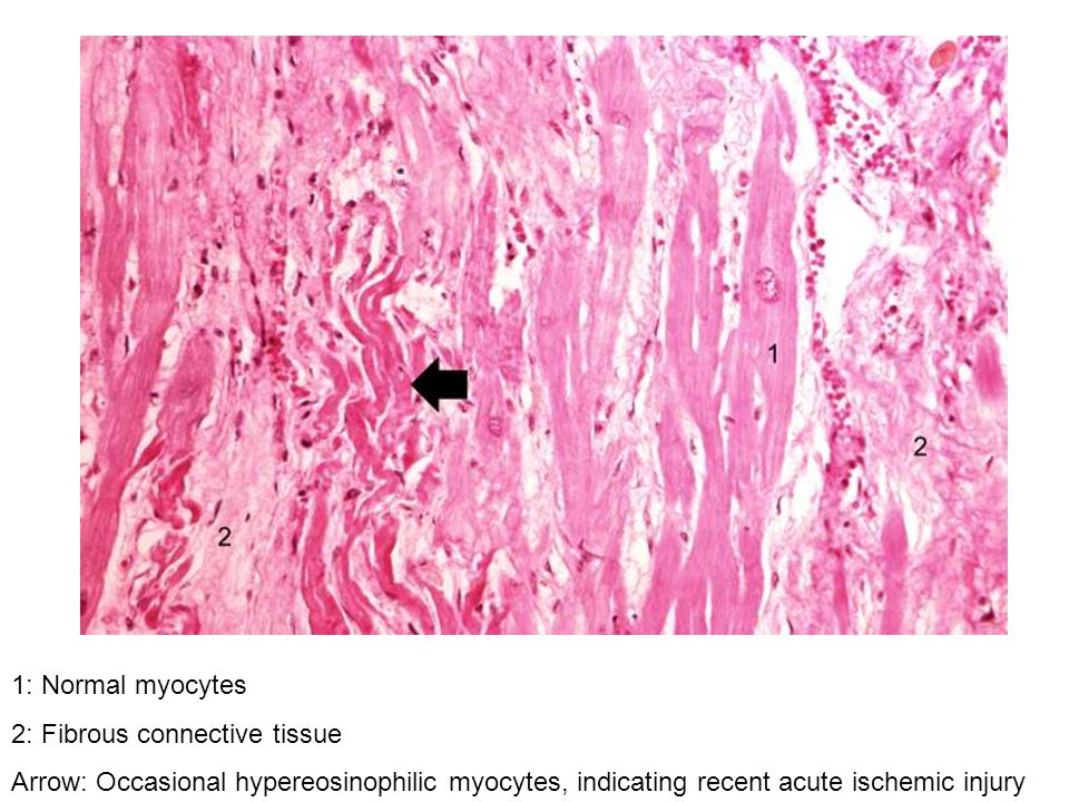 1: Normal myocytes 2: Fibrous connective tissue.