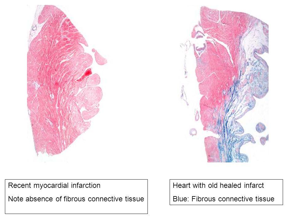 Recent myocardial infarction