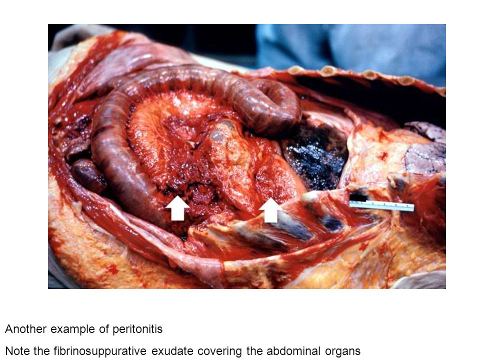 Another example of peritonitis