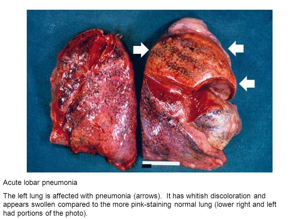 Acute lobar pneumonia