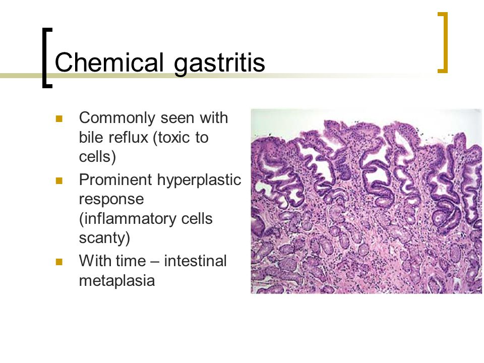 Chemical gastritis Commonly seen with bile reflux (toxic to cells)