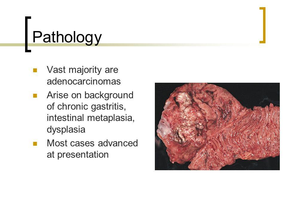 Pathology Vast majority are adenocarcinomas