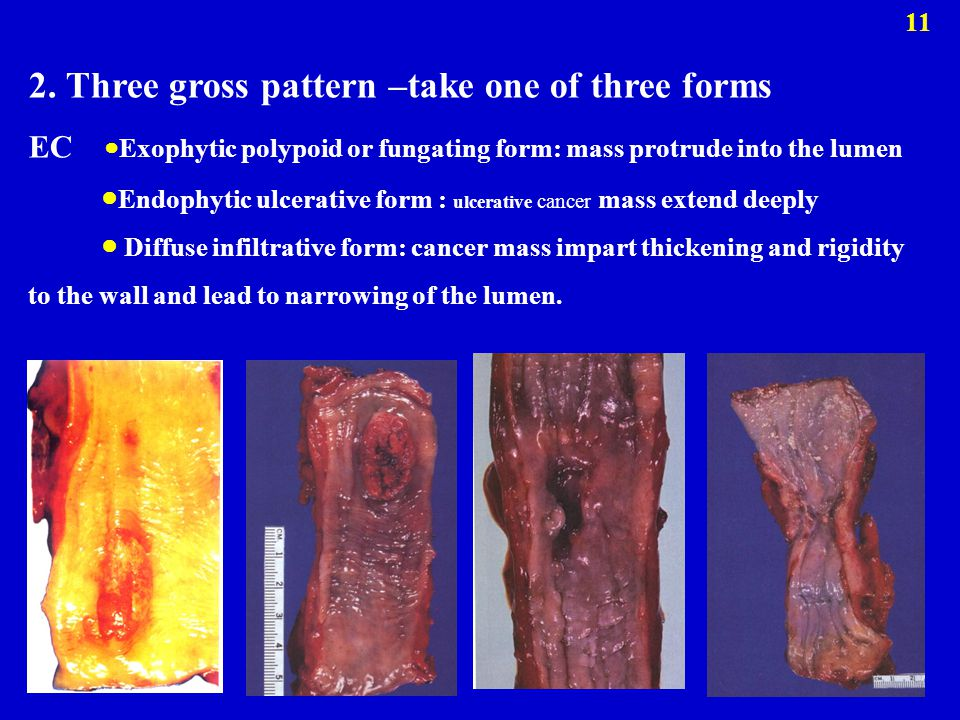 2. Three gross pattern –take one of three forms