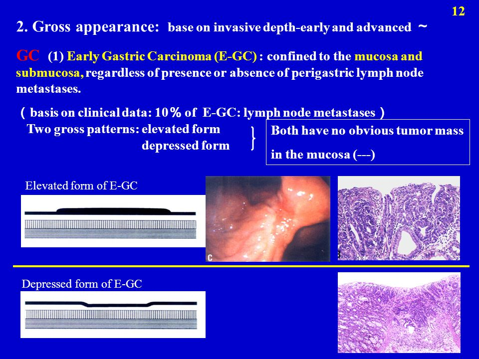 2. Gross appearance: base on invasive depth-early and advanced ~