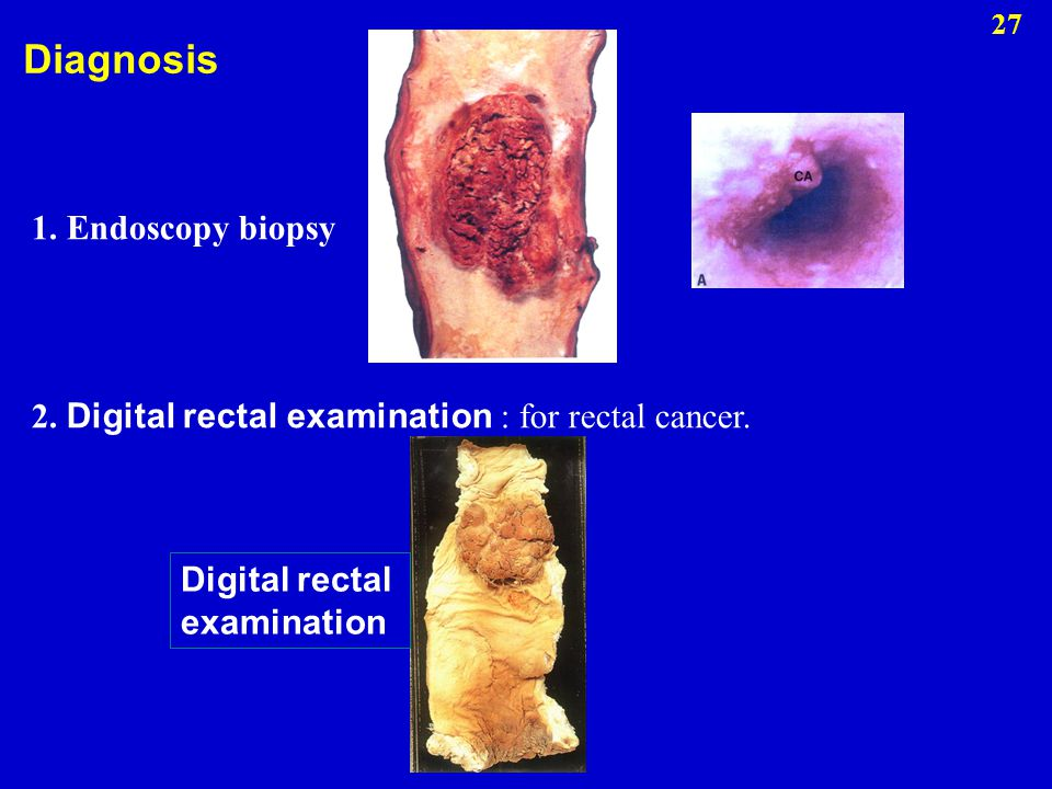 Diagnosis 1. Endoscopy biopsy