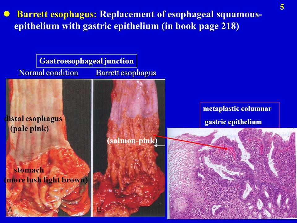 Barrett esophagus: Replacement of esophageal squamous-epithelium with gastric epithelium (in book page 218)