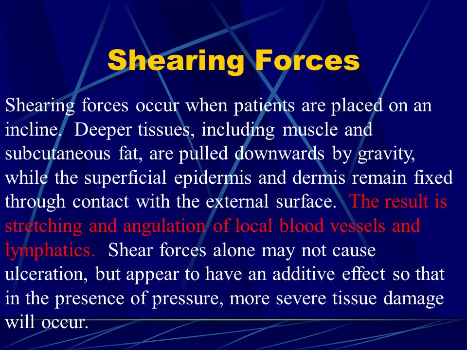 Shearing Forces