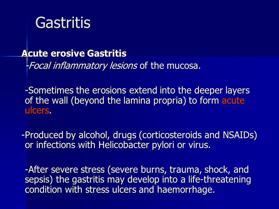 Gastritis Acute erosive Gastritis