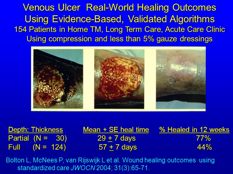 Venous Ulcer Real-World Healing Outcomes Using Evidence-Based, Validated Algorithms