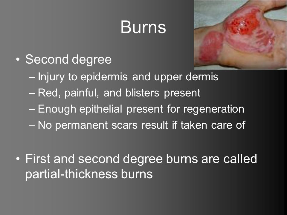 Burns Second degree. Injury to epidermis and upper dermis. Red, painful, and blisters present. Enough epithelial present for regeneration.