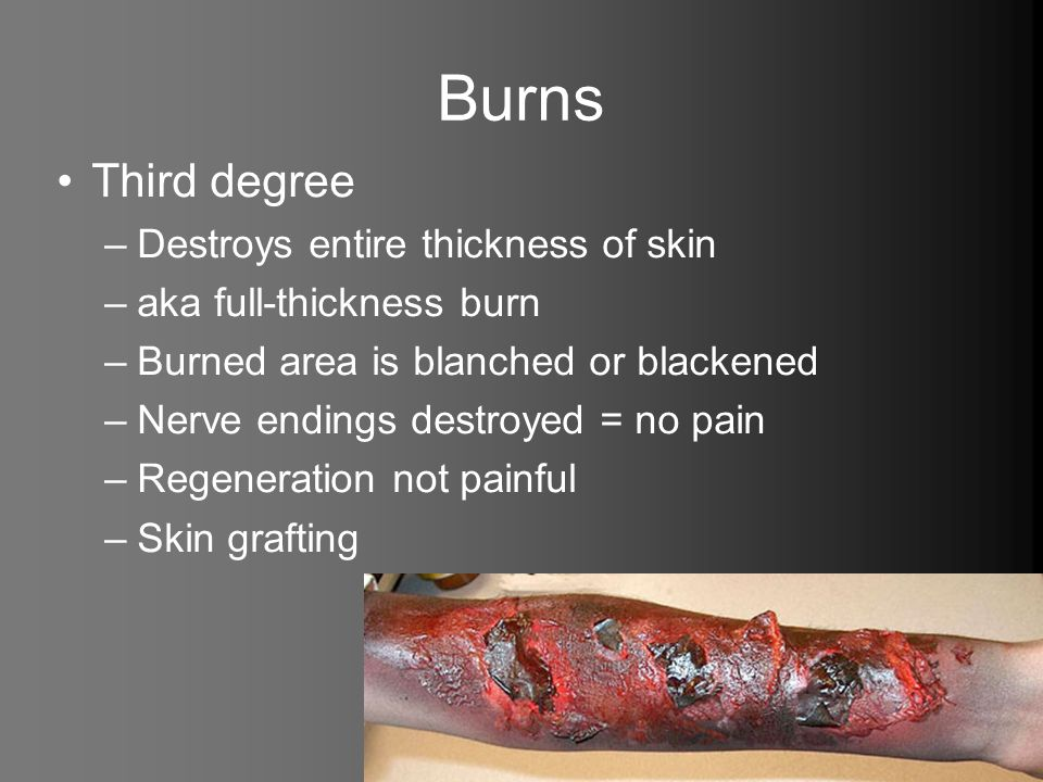 Burns Third degree Destroys entire thickness of skin