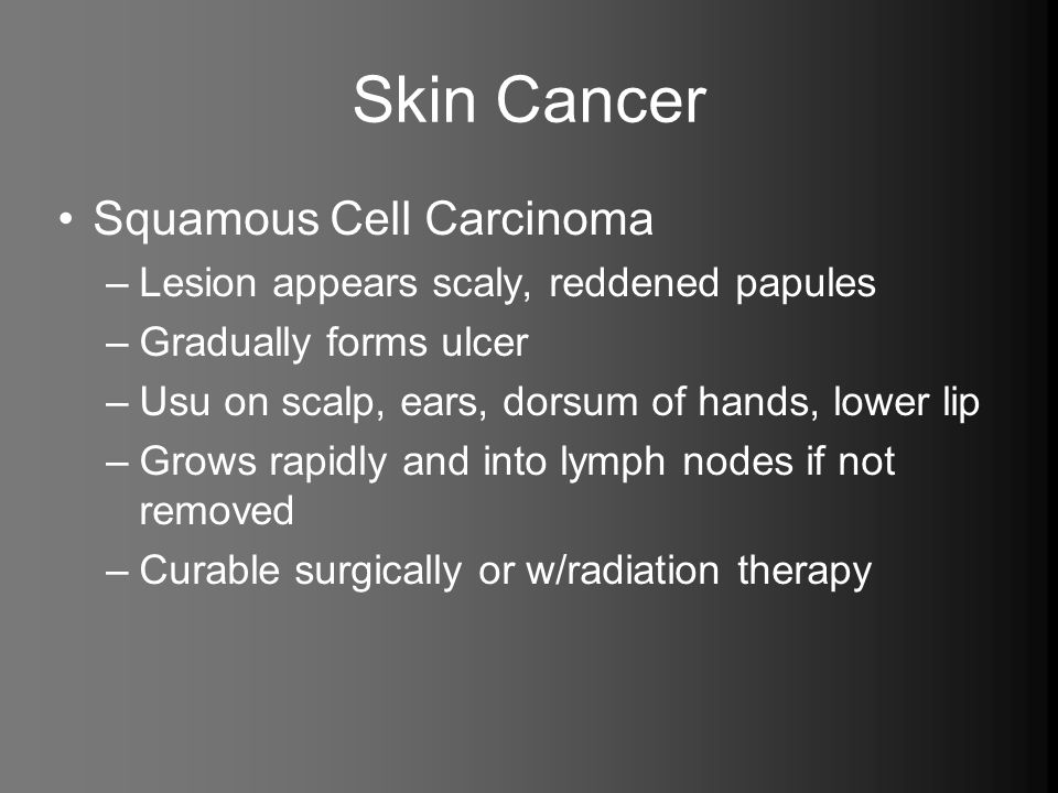 Skin Cancer Squamous Cell Carcinoma