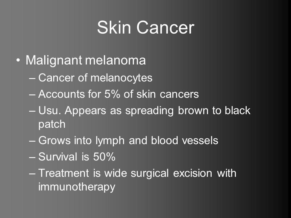Skin Cancer Malignant melanoma Cancer of melanocytes