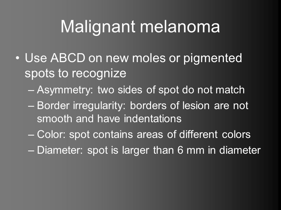 Malignant melanoma Use ABCD on new moles or pigmented spots to recognize. Asymmetry: two sides of spot do not match.