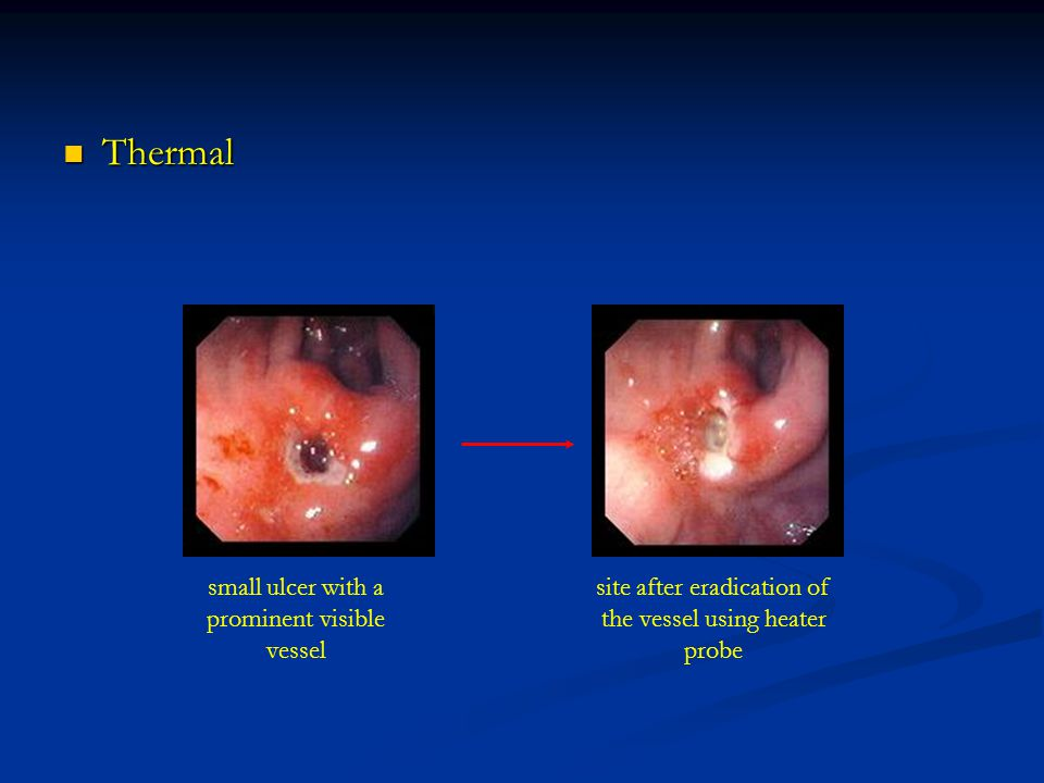 Thermal small ulcer with a prominent visible vessel