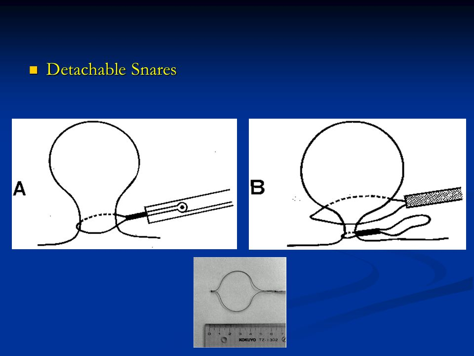 Detachable Snares