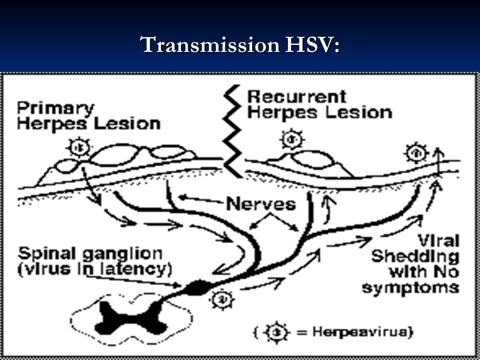 Transmission HSV: Nurses when caring for clients with HSV beware of Herpetic whitlow (autoinoculation of herpes simplex virus to fingers).