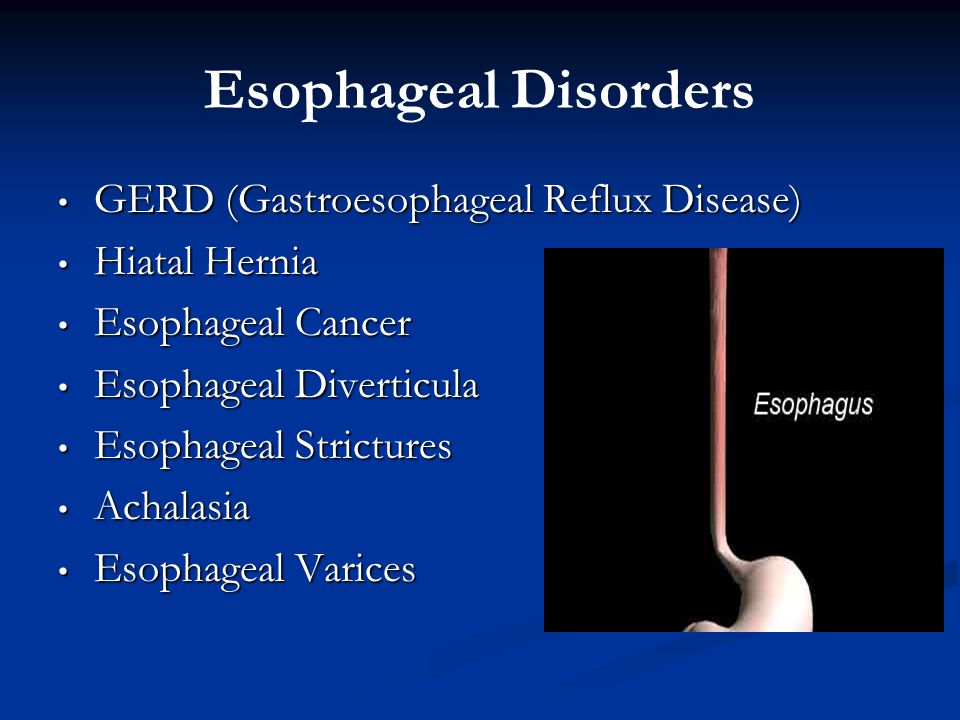 Esophageal Disorders GERD (Gastroesophageal Reflux Disease)