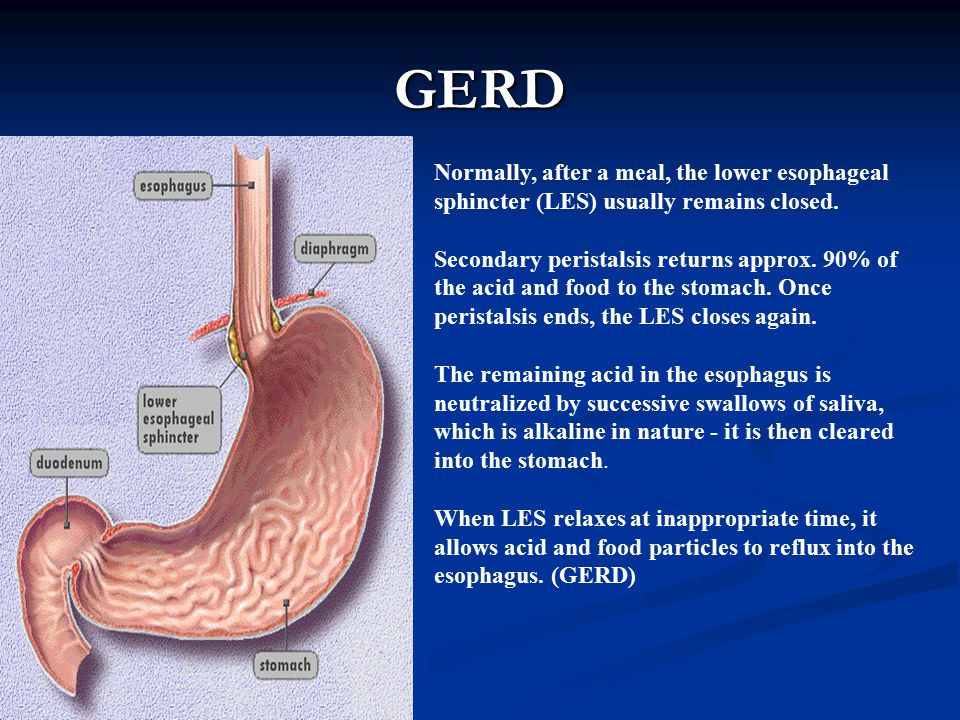 GERD Normally, after a meal, the lower esophageal sphincter (LES) usually remains closed.