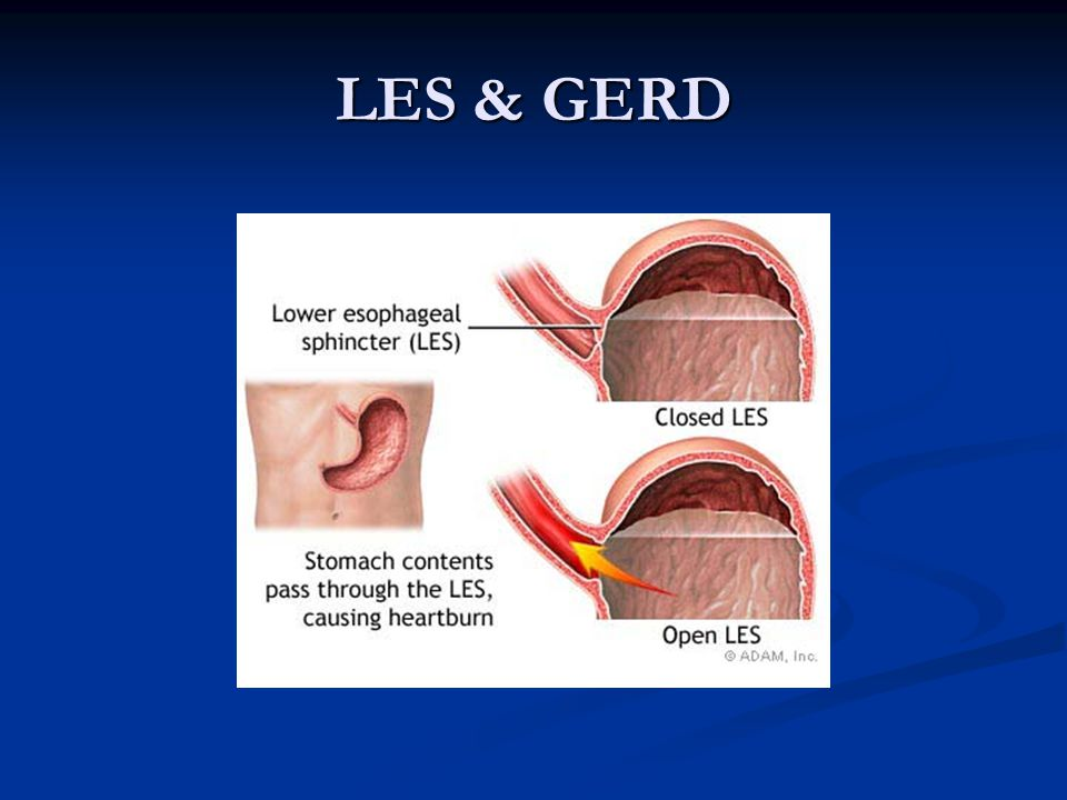 LES & GERD Results in a decrease in pressure in distal portion of esophagus.