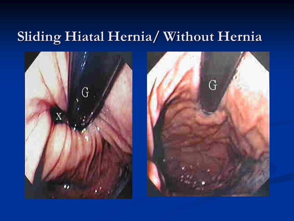 Sliding Hiatal Hernia/ Without Hernia