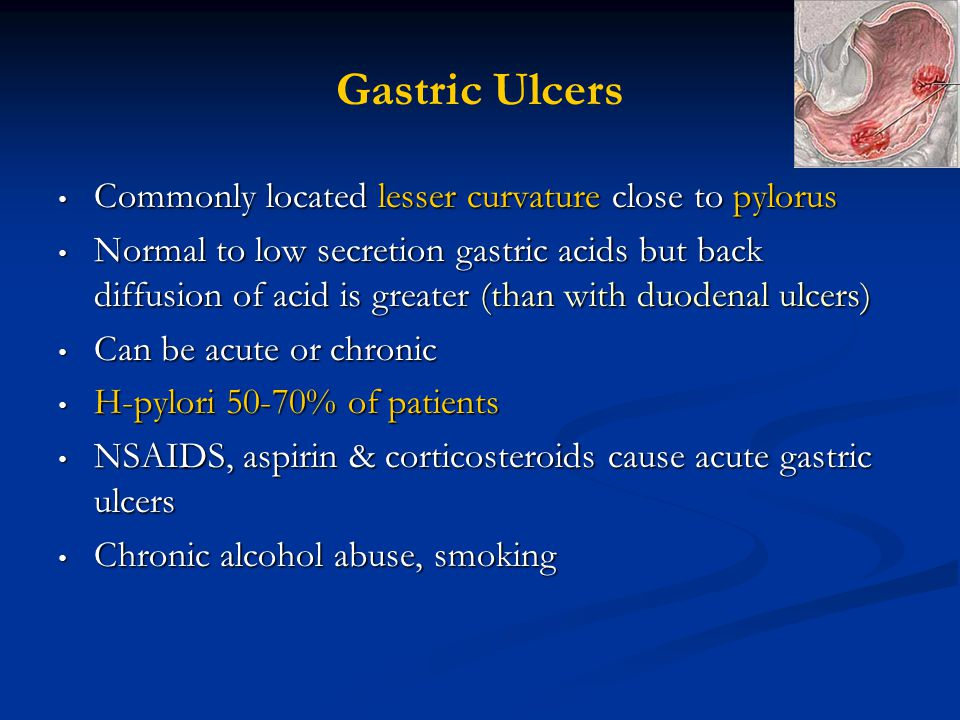 Gastric Ulcers Commonly located lesser curvature close to pylorus