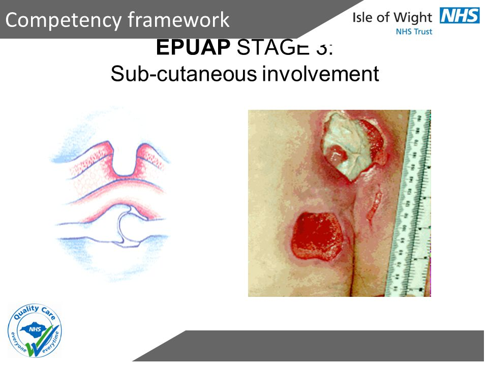 EPUAP STAGE 3: Sub-cutaneous involvement