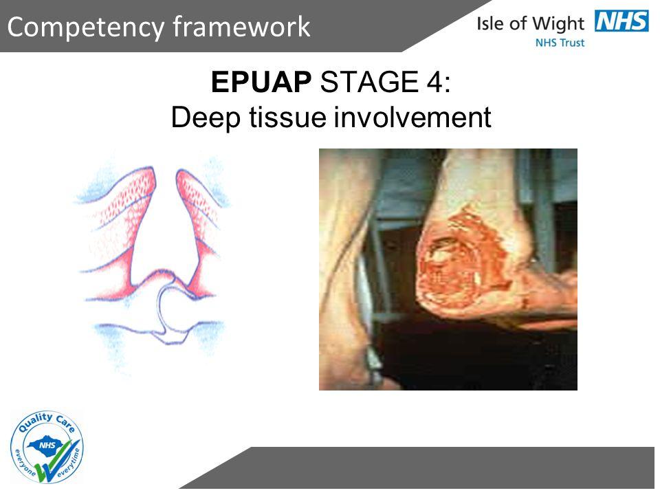 EPUAP STAGE 4: Deep tissue involvement