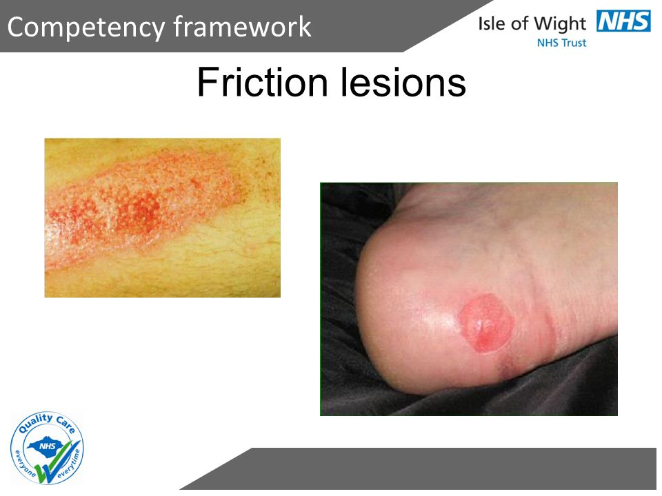 Competency framework Friction lesions