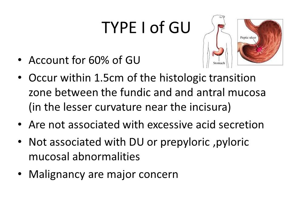 TYPE I of GU Account for 60% of GU