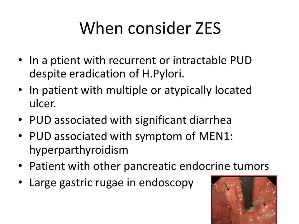 When consider ZES In a ptient with recurrent or intractable PUD despite eradication of H.Pylori.