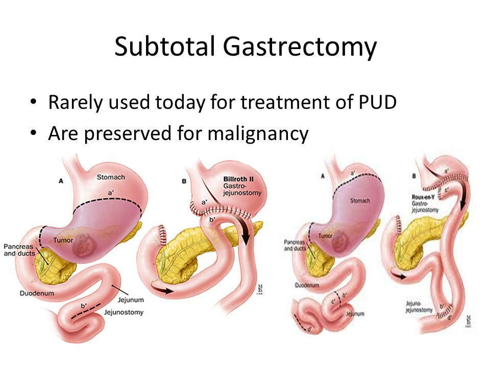 Subtotal Gastrectomy Rarely used today for treatment of PUD