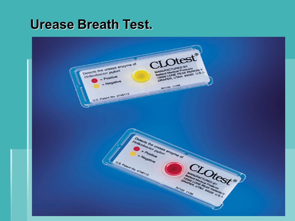 Urease Breath Test.