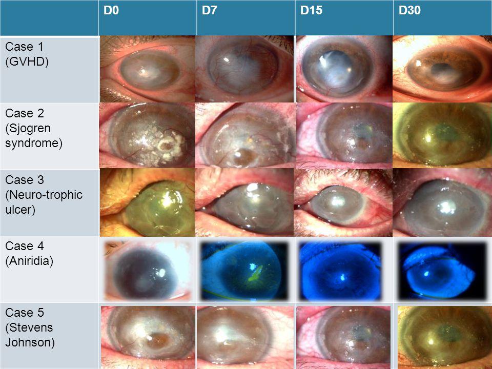 D0 D7. D15. D30. Case 1. (GVHD) Case 2. (Sjogren syndrome) Case 3. (Neuro-trophic ulcer) Case 4.