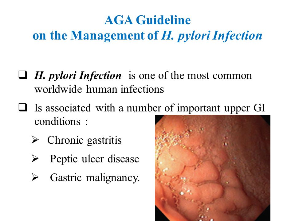 AGA Guideline on the Management of H. pylori Infection