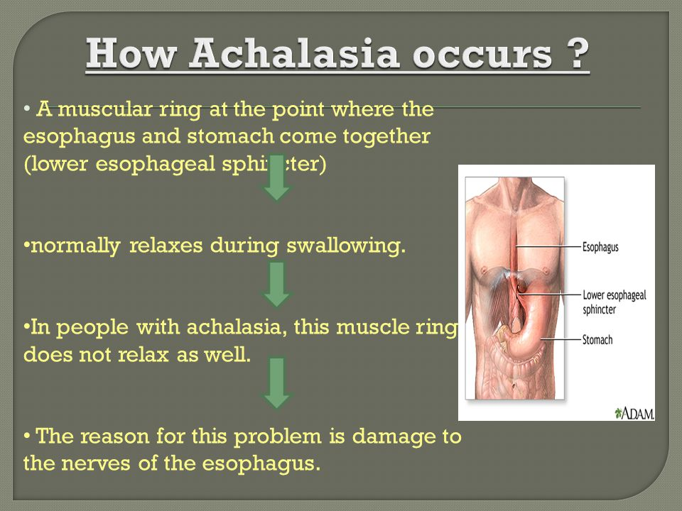 How Achalasia occurs A muscular ring at the point where the esophagus and stomach come together (lower esophageal sphincter)