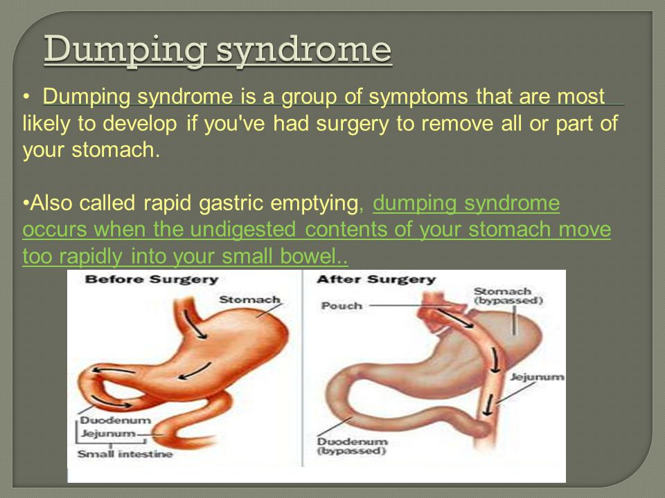 Dumping syndrome Dumping syndrome is a group of symptoms that are most likely to develop if you ve had surgery to remove all or part of your stomach.