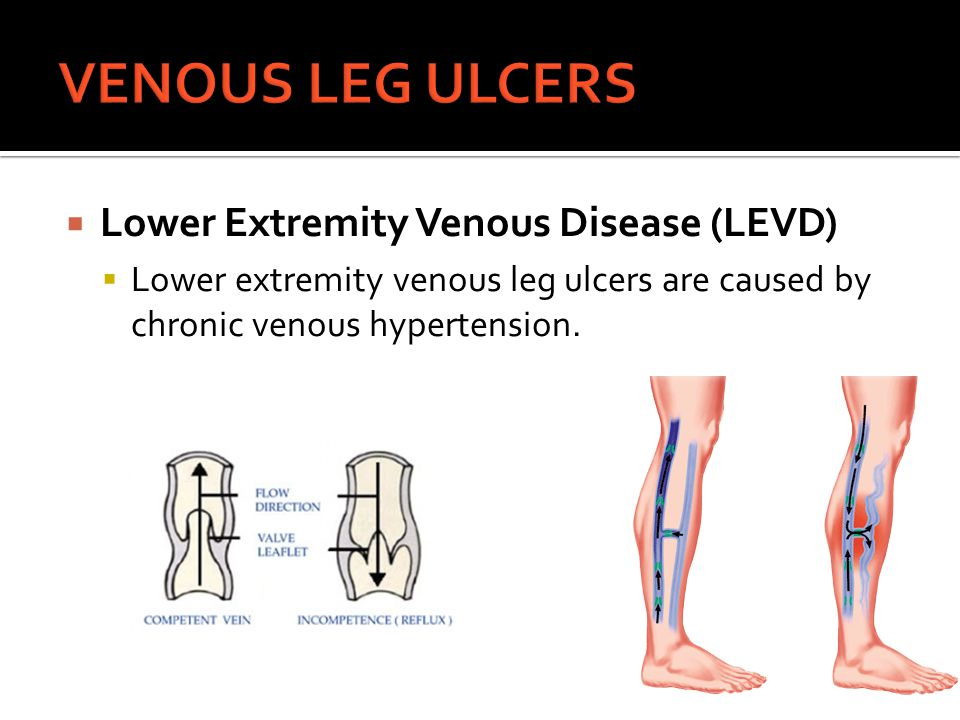 VENOUS LEG ULCERS Lower Extremity Venous Disease (LEVD)