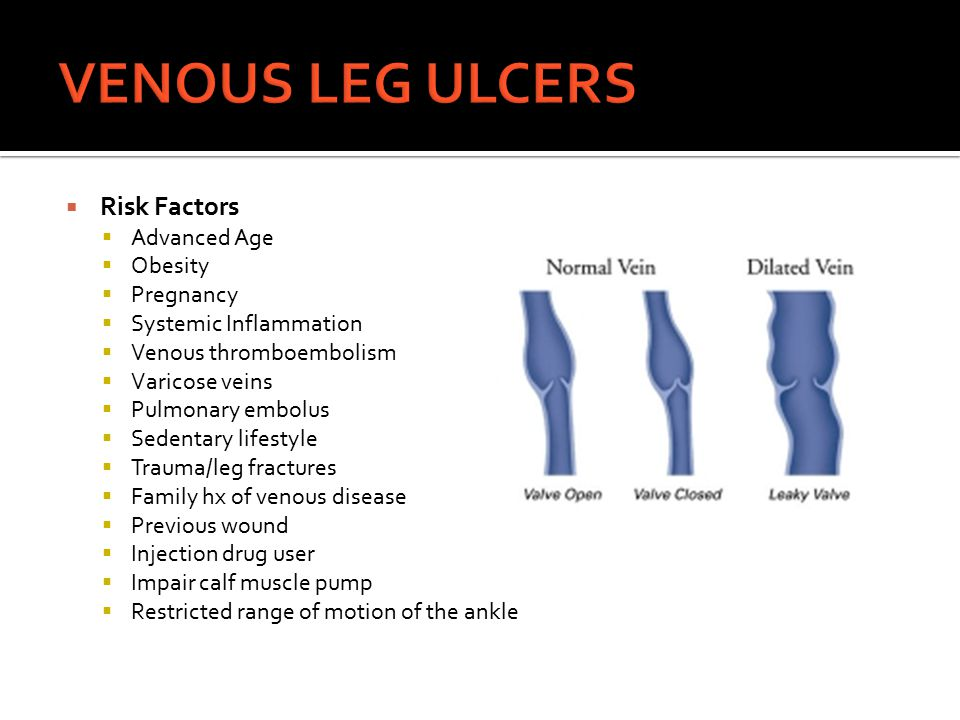 VENOUS LEG ULCERS Risk Factors Advanced Age Obesity Pregnancy
