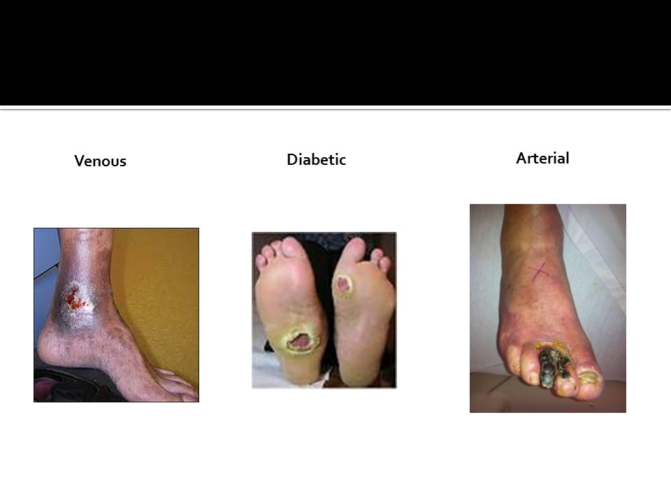 Venous Diabetic Arterial