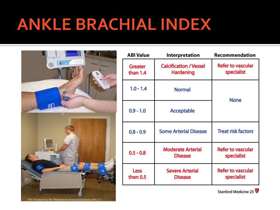 ANKLE BRACHIAL INDEX