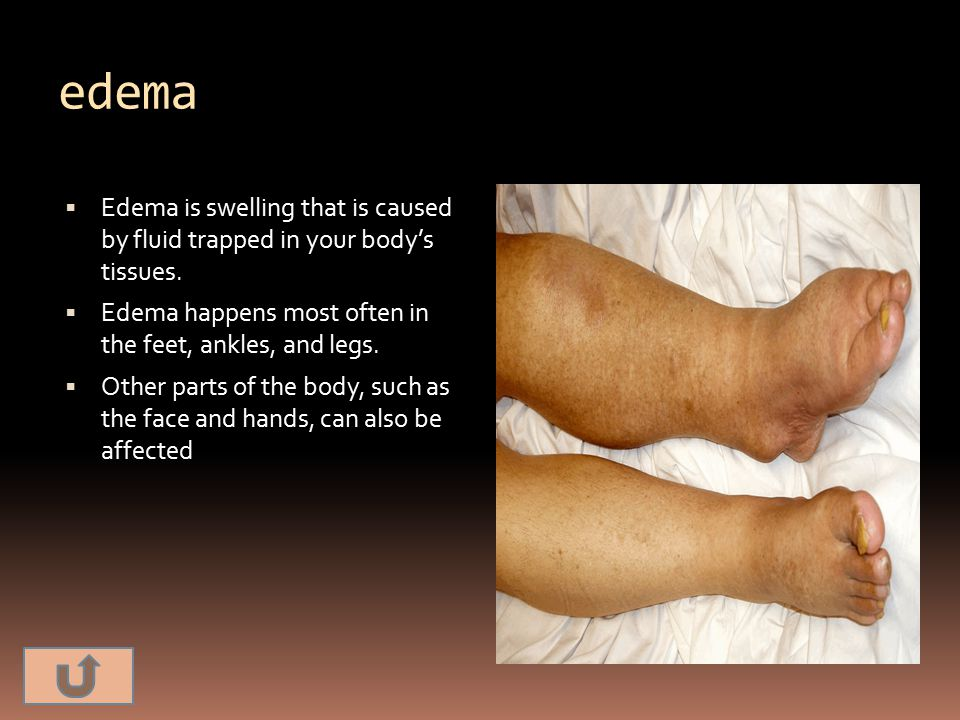 edema Edema is swelling that is caused by fluid trapped in your body's tissues. Edema happens most often in the feet, ankles, and legs.