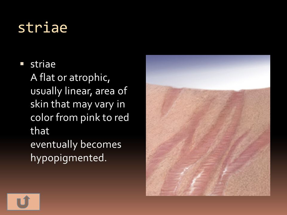 striae striae A flat or atrophic, usually linear, area of skin that may vary in color from pink to red that eventually becomes hypopigmented.