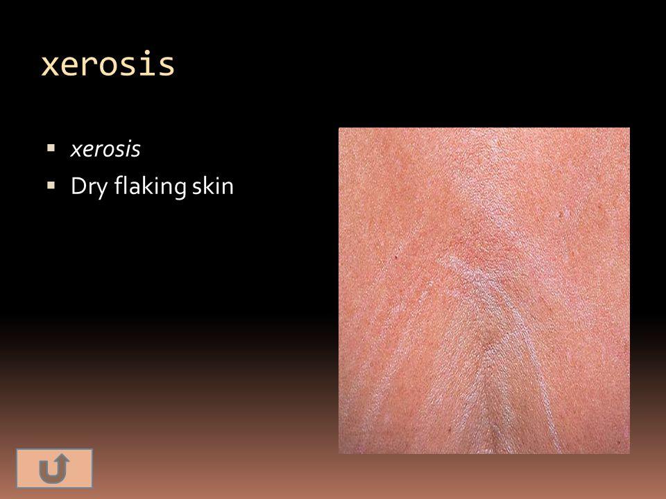 xerosis xerosis Dry flaking skin