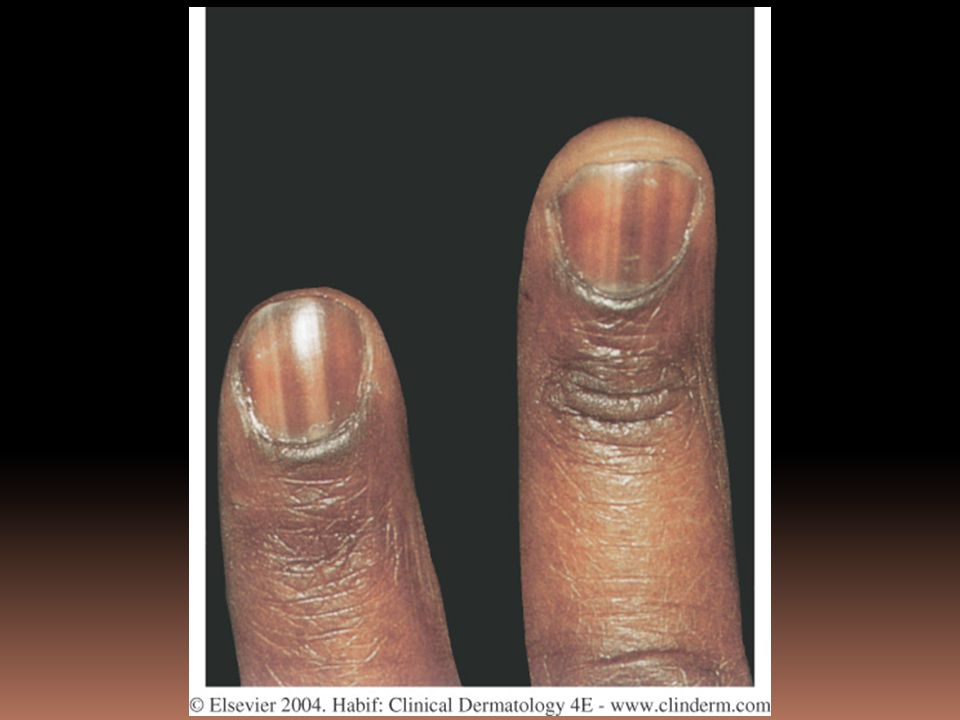 Figure 25-5 Pigmented bands occur as a normal finding in more than 90% of blacks.