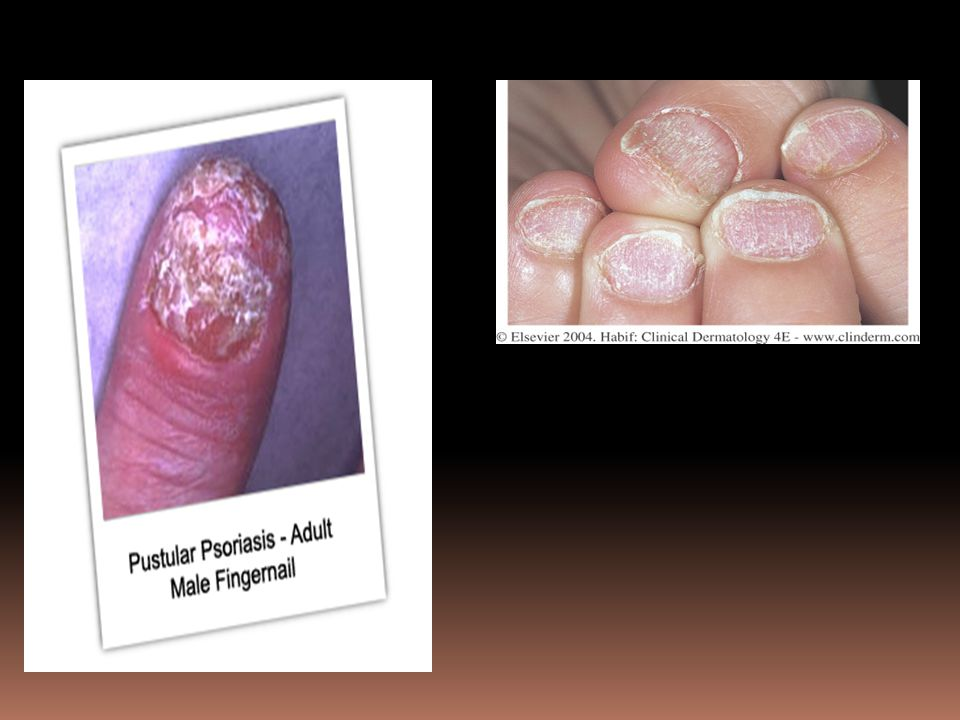 Figure 25-8 Psoriasis of the entire nail matrix causes grossly deformed nails.