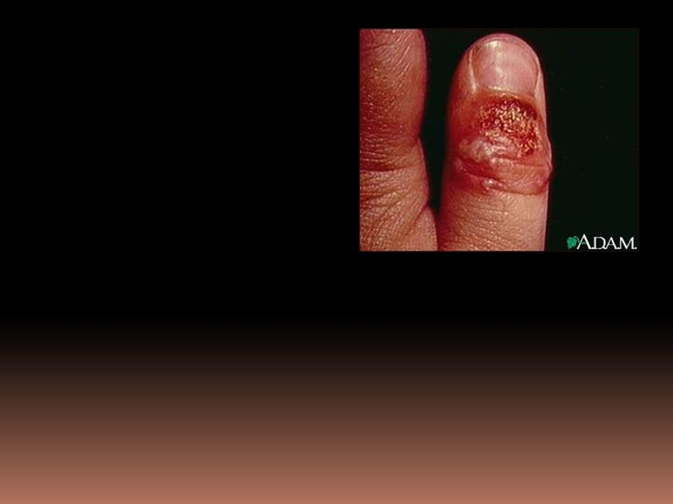 Figure 25-18 Herpes simplex of the finger (herpetic whitlow)