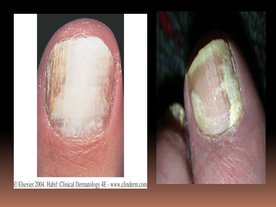 Figure 25-25 White superficial onychomycosis